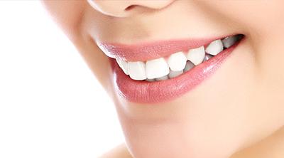 Ästhetische Zahnheilkunde in Bickenbach
